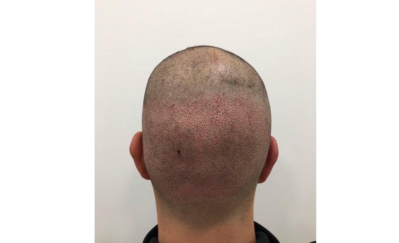 Injermur soluciona cualquier tipo de alopecia