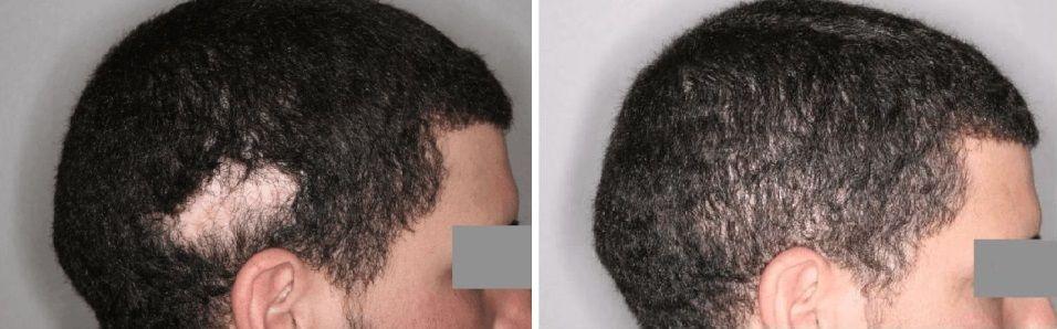 Implante capilar en cicatrices