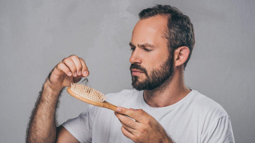 Trasplante de cabello preventivo es la mejor solución para la alopecia