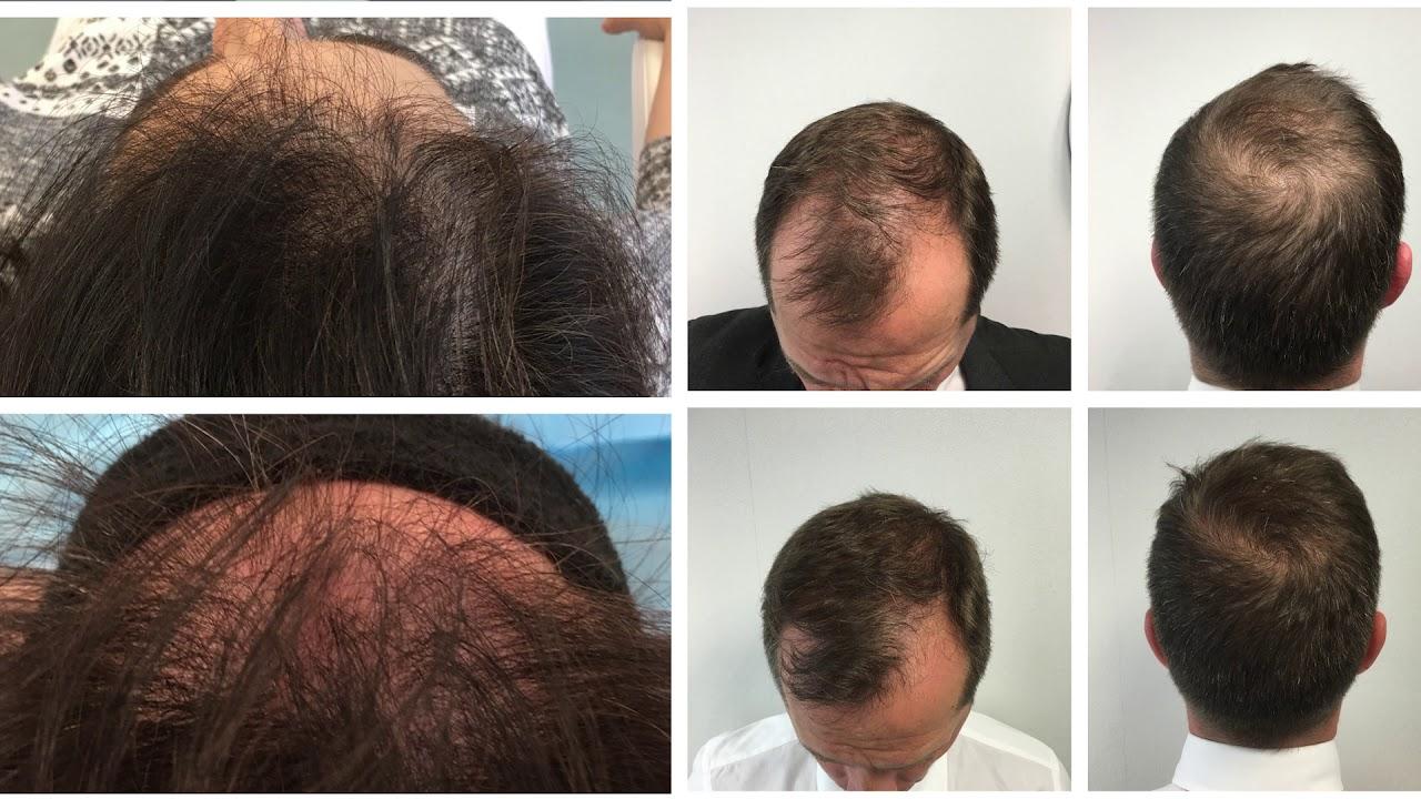 Trasplante de cabello preventivo