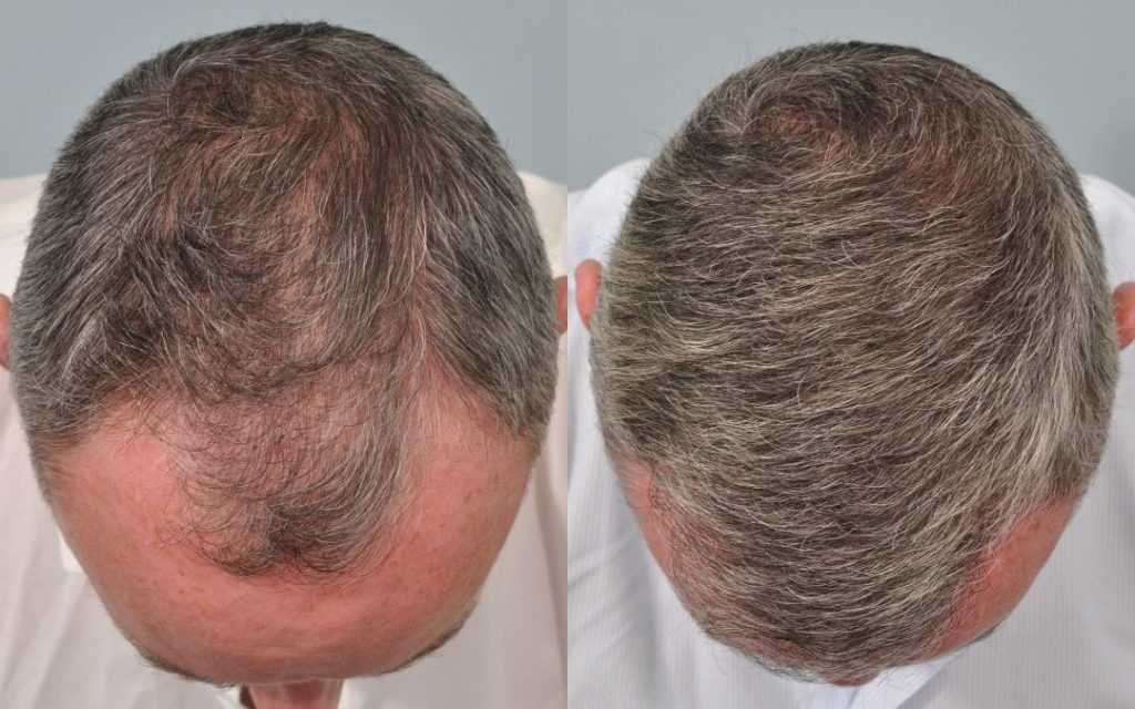 los pros del implante de pelo
