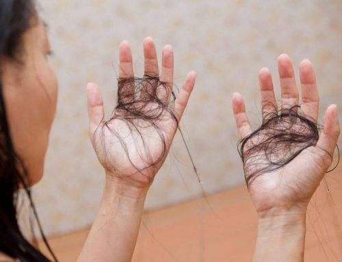 Enfermedades detrás de la pérdida de cabello: ¿Qué esconde esta condición?