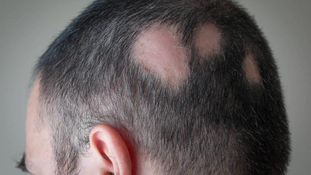 Enfermedades detrás de la pérdida de cabello y sus causas