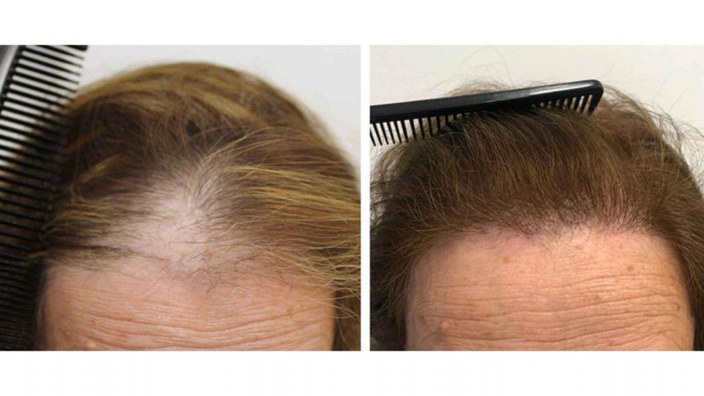 La alopecia femenina puede originarse gracias a la menopausia y a los desequilibrios hormonales que esta etapa de la vida trae consigo para la mujer