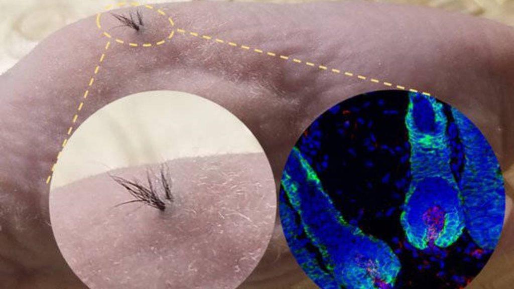 pelo con células madres la solución