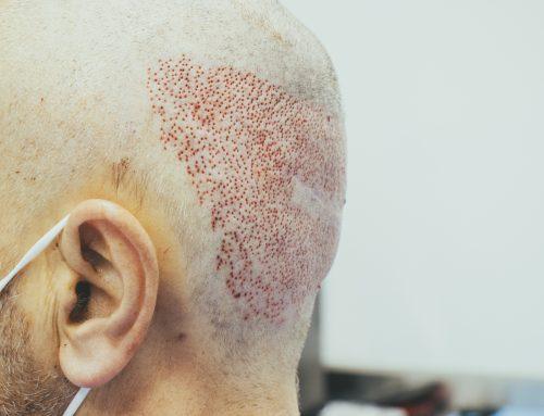 Conoce la importancia de un buen tratamiento capilar después de un trasplante de pelo